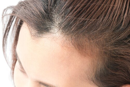 Biotin for hair thinning