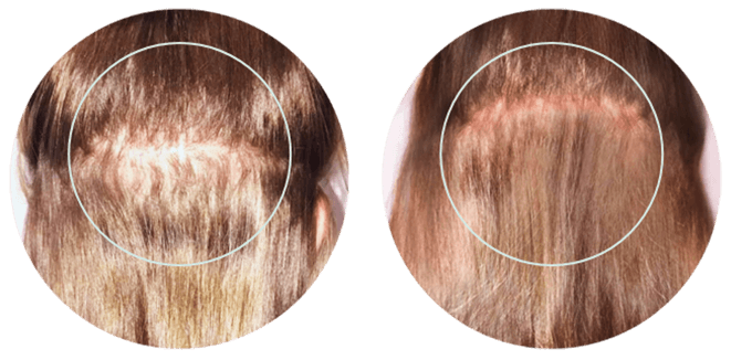 Before & After using KeraHealth for Women hair growth supplements