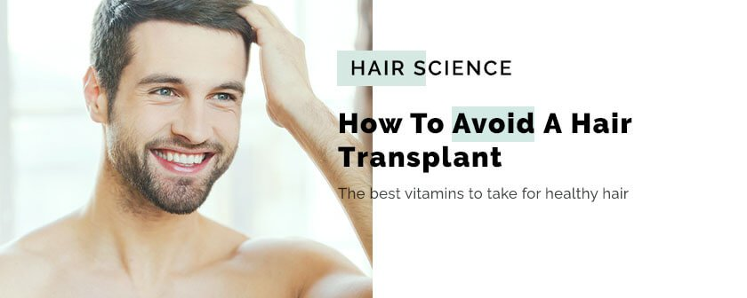 How To Avoid A Hair Transplant