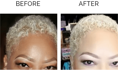 Before & After - Angel