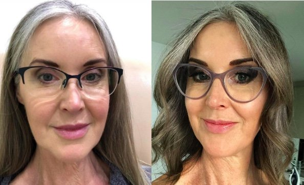 Sharon Young before and after KeraHealth use