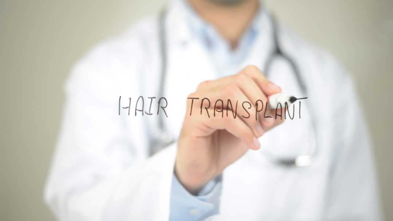 Why Hair Transplants are Getting Less Popular